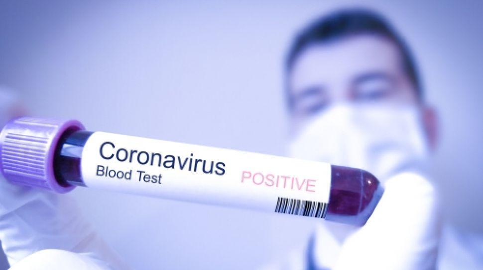 Apa itu Penyakit coronavirus (COVID-19), dan Bagamaiana Mencegah Virus Corona